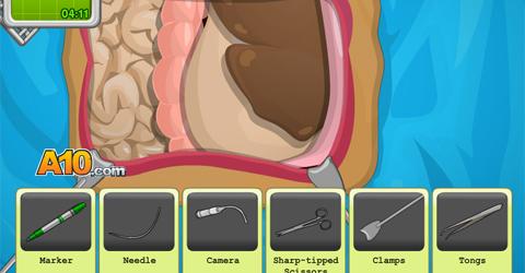 magen-operation